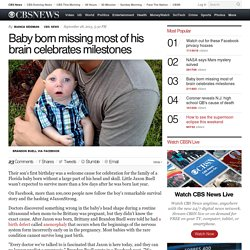 Baby born missing most of his brain celebrates milestones