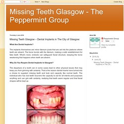 Missing Teeth Glasgow - The Peppermint Group: Missing Teeth Glasgow – Dental Implants in The City of Glasgow:
