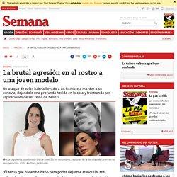 Modelo es mordida en la cara y agredida en Bogotá