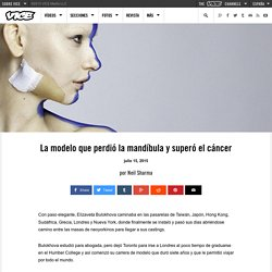 La modelo que perdió la mandíbula y superó el cáncer
