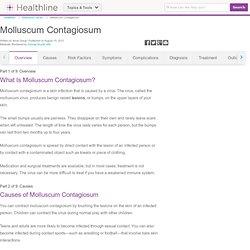 Molluscum Contagiosum: Causes, Symptoms, Treatment & Pictures