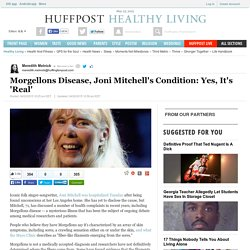 Morgellons Disease, Joni Mitchell's Condition: Yes, It's 'Real'