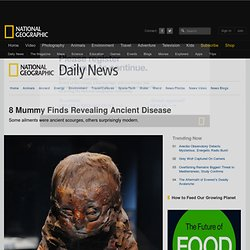 Mummies Show Symptoms, Offer Disease Clues