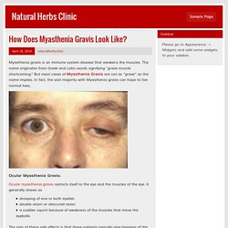 How Does Myasthenia Gravis Look Like? – Natural Herbs Clinic