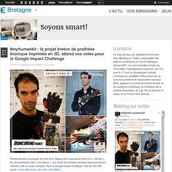 #myhumankit : le projet breton de prothèse bionique imprimée en 3D, attend vos votes pour le Google Impact Challenge