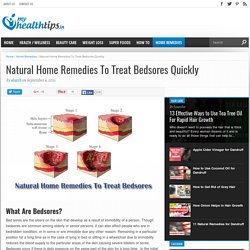 Natural Home Remedies To Treat Bedsores Quickly