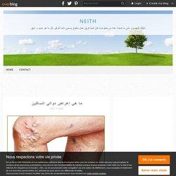 ما هي اعراض دوالي الساقين - neith