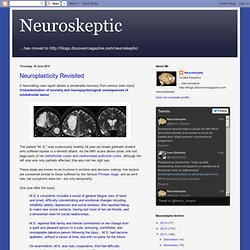 Neuroplasticity Revisited