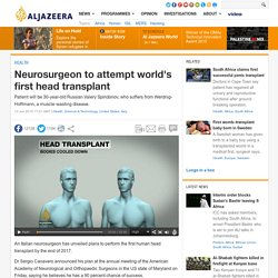 Neurosurgeon to attempt world's first head transplant