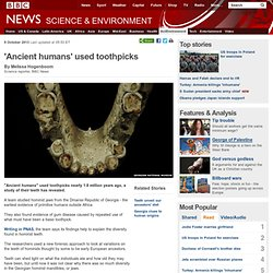 'Ancient humans' used toothpicks