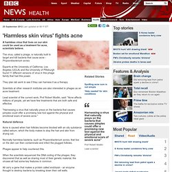 'Harmless skin virus' fights acne