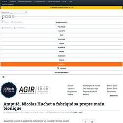 Amputé, Nicolas Huchet a fabriqué sa propre main bionique