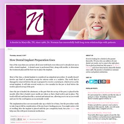 How Dental Implant Preparation Goes