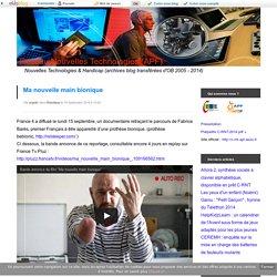 Ma nouvelle main bionique - Réseau Nouvelles Technologies (APF)