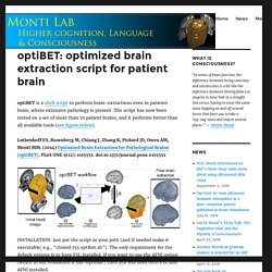 optiBET: optimized brain extraction script for patient brain – Professor Martin Monti's lab website