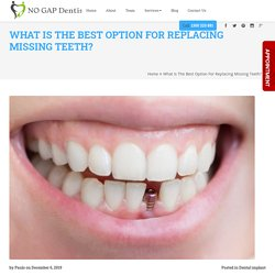 What is the best option for replacing missing teeth?