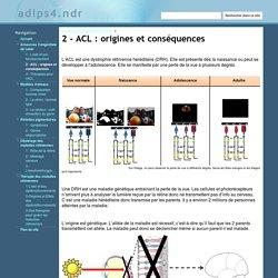 2 - ACL : origines et conséquences - adlps4.ndr