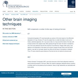 Other brain imaging techniques — NDCN