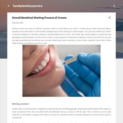 Overall Beneficial Working Process of Crowns