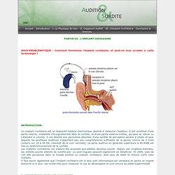 Partie III: L\'implant Cochléaire