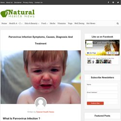 Parvovirus Infection Symptoms, Causes, Diagnosis And Treatment