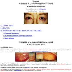 Chap. 4 : Pathologie de la conjonctive et de la cornée Faculté de médecine Saint-Etienne