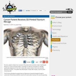 Cancer Patient Receives 3D-Printed Titanium Ribcage