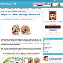 Pengobatan Kanker Otak Hingga Sembuh Total