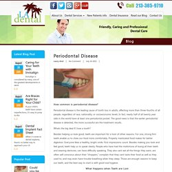 Periodontal Disease - LA Dental Clinic