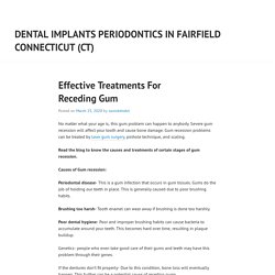 Effective Treatments For Receding Gum – Dental Implants Periodontics in Fairfield Connecticut (CT)