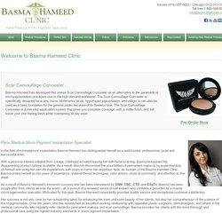 Basma Hameed Clinic - Permanent Scar Camouflage Tattooist