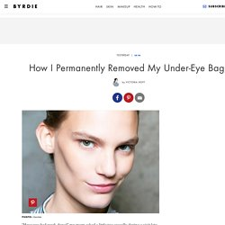 How I Permanently Removed My Under-Eye Bags