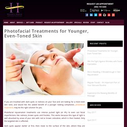 Photofacial Treatments for Younger, Even-Toned Skin