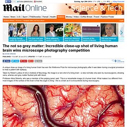 Incredible close-up shot of living human brain wins microscope photography competition | Mail Online