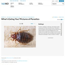 Pictures of Parasites: Lice, Bedbugs, Ringworms, Pinworms, Scabies, and More