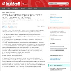 Immediate dental implant placements using osteotome technique