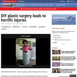 DIY plastic surgery leads to horrific injuries