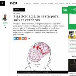 Plasticidad a la carta para salvar cerebros