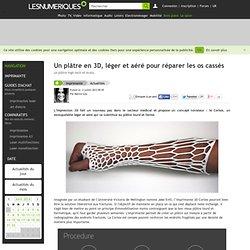 Un plâtre en 3D, léger et aéré pour réparer les os cassés