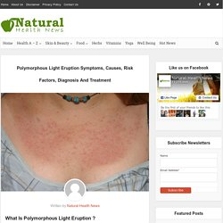 Polymorphous Light Eruption Symptoms, Causes, Risk Factors, Diagnosis And Treatment