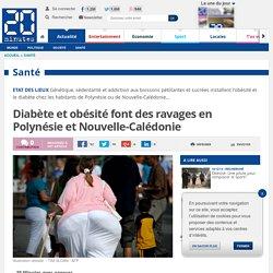 20MINUTES 15/12/14 Diabète et obésité font des ravages en Polynésie et Nouvelle-Calédonie