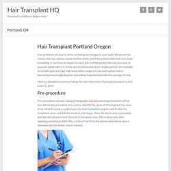 Portland, Oregon Hair Transplant Surgeons
