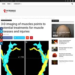 3-D imaging of muscles points to potential treatments for muscle diseases and injuries - Scienmag