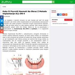 Kako si povrniti nasmeh na obraz z metodo implantacije ALL-ON-4