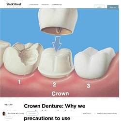 Crown Denture: Why we needed it and what precautions to use – StackStreet