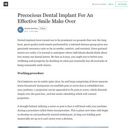 Precocious Dental Implant For An Effective Smile Make Over