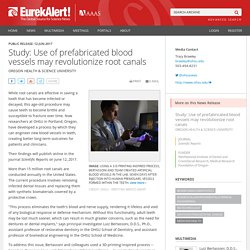 Study: Use of prefabricated blood vessels may revolutionize root canals