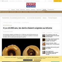 Préhistoire : les caries de l'âge de glace étaient soignées au bitume - Sciencesetavenir.fr