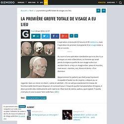 La première greffe totale de visage a eu lieu - Gizmodo -