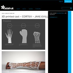 3D printed cast – CORTEX – JAKE EVILL